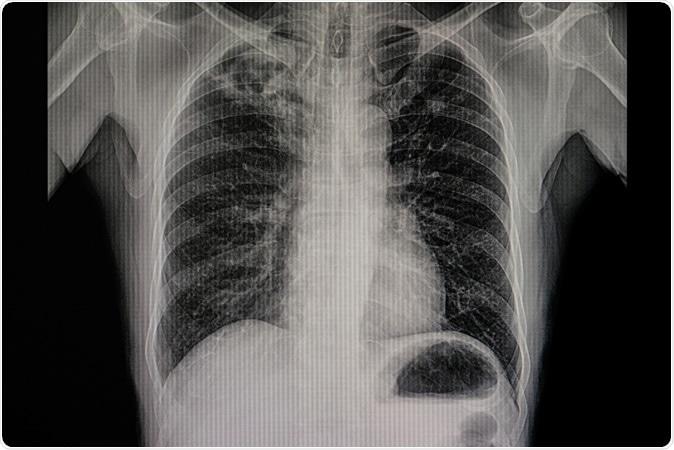 La nueva terapia de la inhalación podía relevar fibrosis del ...