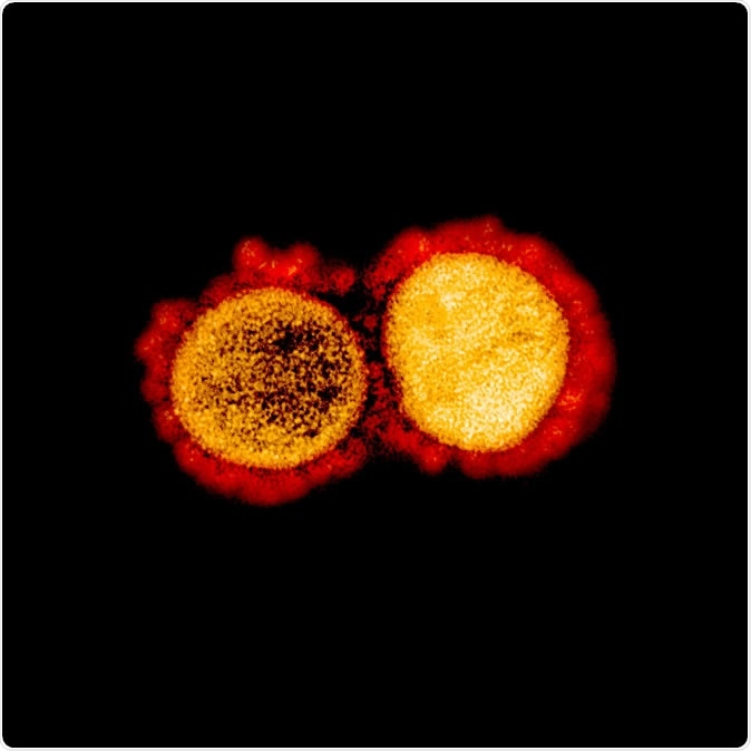 Novel Coronavirus SARS-CoV-2 Transmission electron micrograph of SARS-CoV-2 virus particles, isolated from a patient. Image captured and color-enhanced at the NIAID Integrated Research Facility (IRF) in Fort Detrick, Maryland. Credit: NIAID