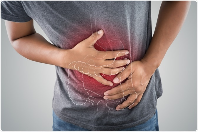 Identifying Biomarkers For Ibs