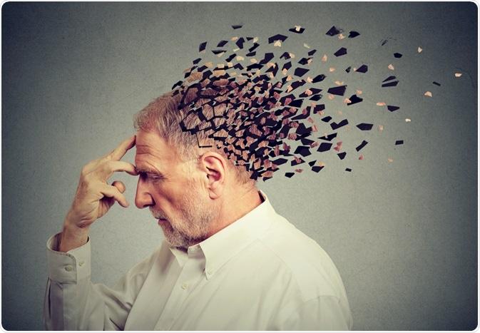 Sexo y enfermedad de Alzheimer
