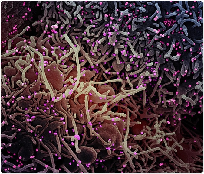 Novel Coronavirus SARS-CoV-2 Colorized scanning electron micrograph of a VERO E6 cell (purple) exhibiting elongated cell projections and signs of apoptosis, after infection with SARS-COV-2 virus particles (pink), which were isolated from a patient sample. Image captured at the NIAID Integrated Research Facility (IRF) in Fort Detrick, Maryland. Credit: NIAID
