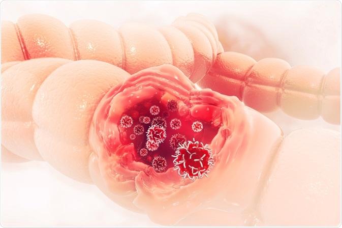 Cancer de colon en mujeres sintomas