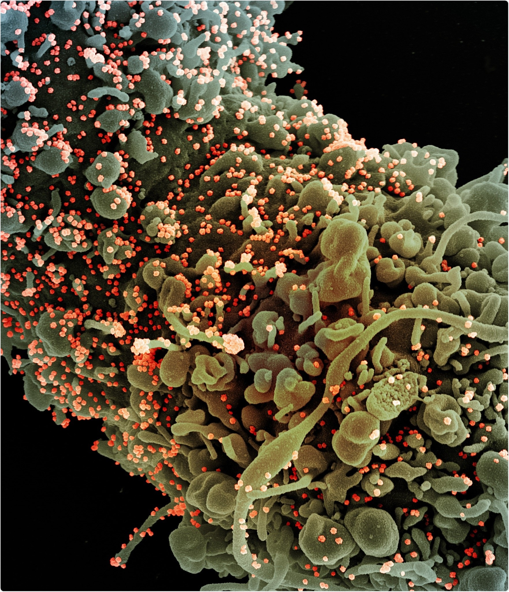Colorized scanning electron micrograph of a cell showing morphological signs of apoptosis, infected with SARS-COV-2 virus particles (orange), isolated from a patient sample. Image captured at the NIAID Integrated Research Facility (IRF) in Fort Detrick, Maryland. Credit: NIAID/NIH