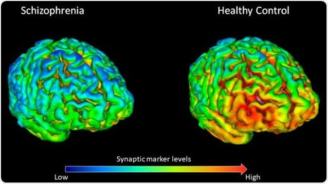 PET brain scans showing that 18 healthy volunteers (right) have on average higher levels (shown by yellow-red) of synapse marker protein SV2A than 18 participants with schizophrenia (left). Image Credit: E. Onwordi at MRC London Institute of Medical Sciences