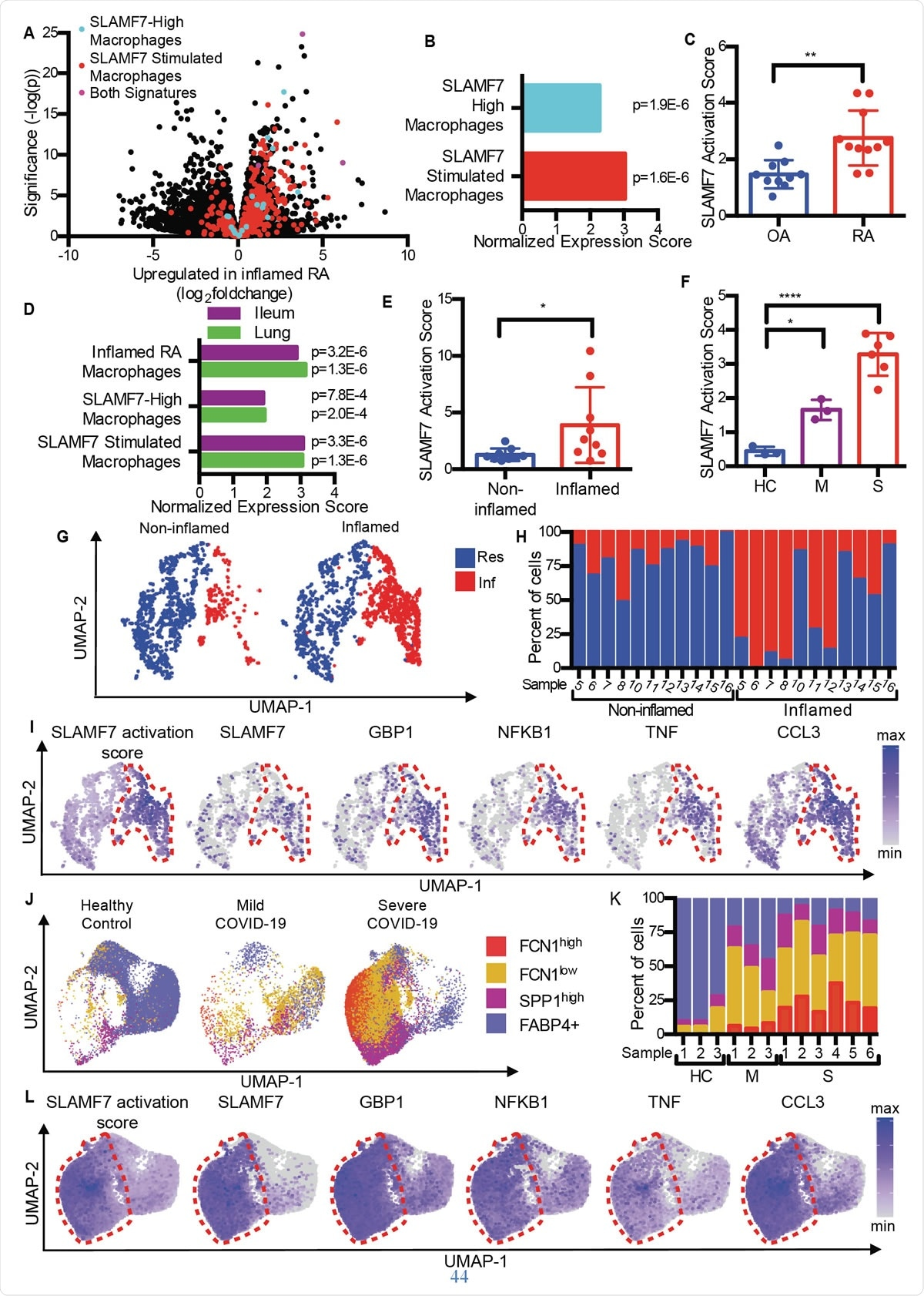 SLAMF7 super-activated macrophages drive inflammation in autoimmune and infectious disease