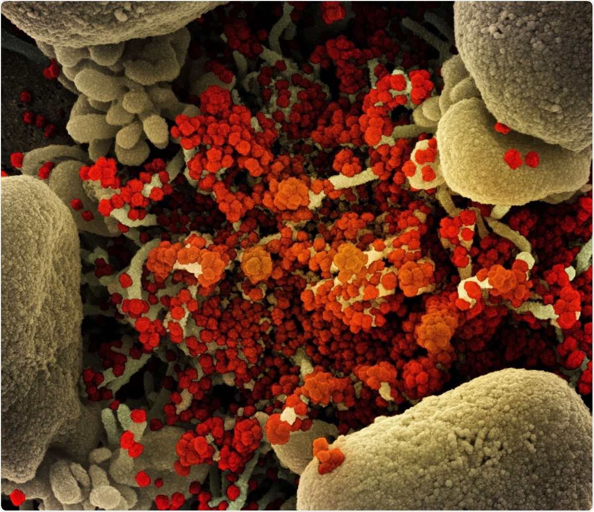 Micrografía electrónica de barrido coloreada de una célula apoptótica (bronceado) muy infectada con partículas del virus del SARS-CoV-2 (naranja), aislada de una muestra de un paciente.  Imagen capturada en la Instalación de Investigación Integrada (IRF) del NIAID en Fort Detrick, Maryland.  Crédito de la imagen: NIAID / Flickr