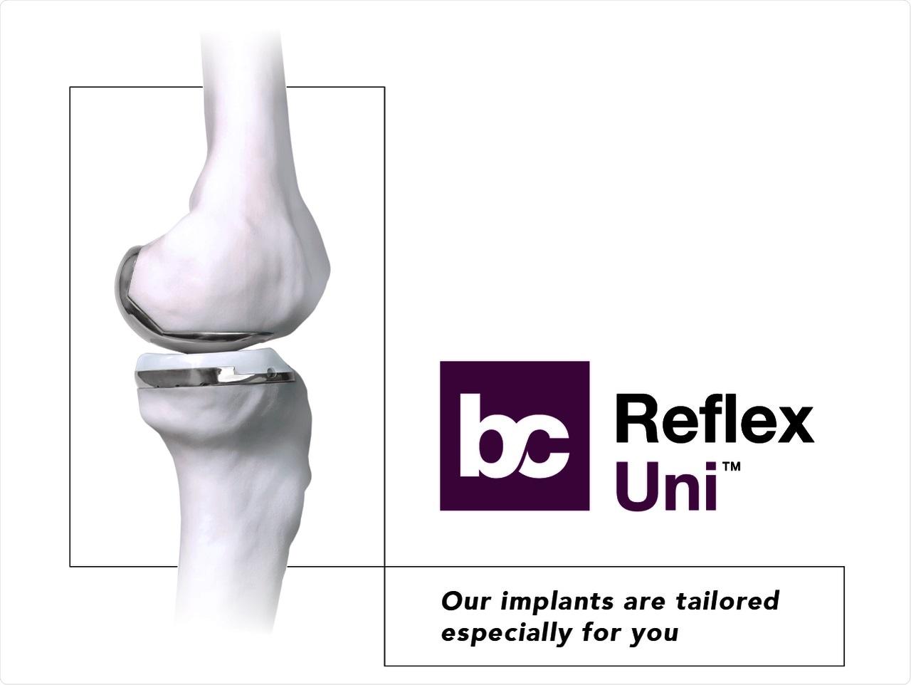 Reflex Uni