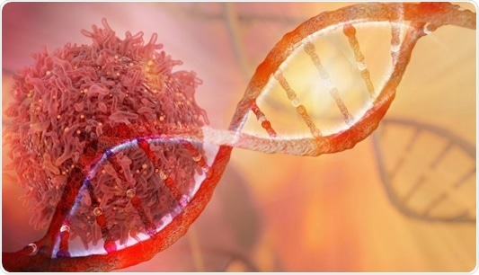CEAT project for improving ovarian cancer diagnosis, treatment shows promise