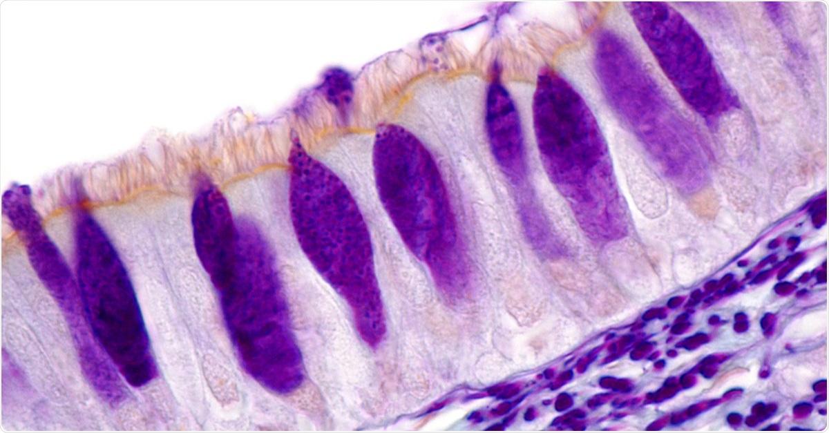 Estudio: La hiperplasia de células caliciformes aumenta la infección por SARS-CoV-2 en la EPOC.  Imagen de células caliciformes en el epitelio respiratorio ciliado de la tráquea, con su moco teñido de color violeta.  También se tiñen las fibras elásticas ubicadas debajo del epitelio.  Imagen de microscopio de luz.  Haber de imagen: Jose Luis Calvo / Shutterstock