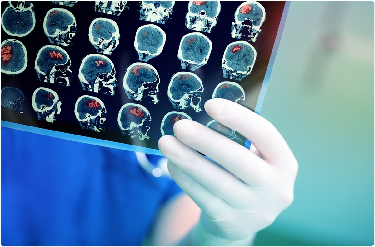 Men and women may require different brain tumor therapy study finds – News-Medical.Net