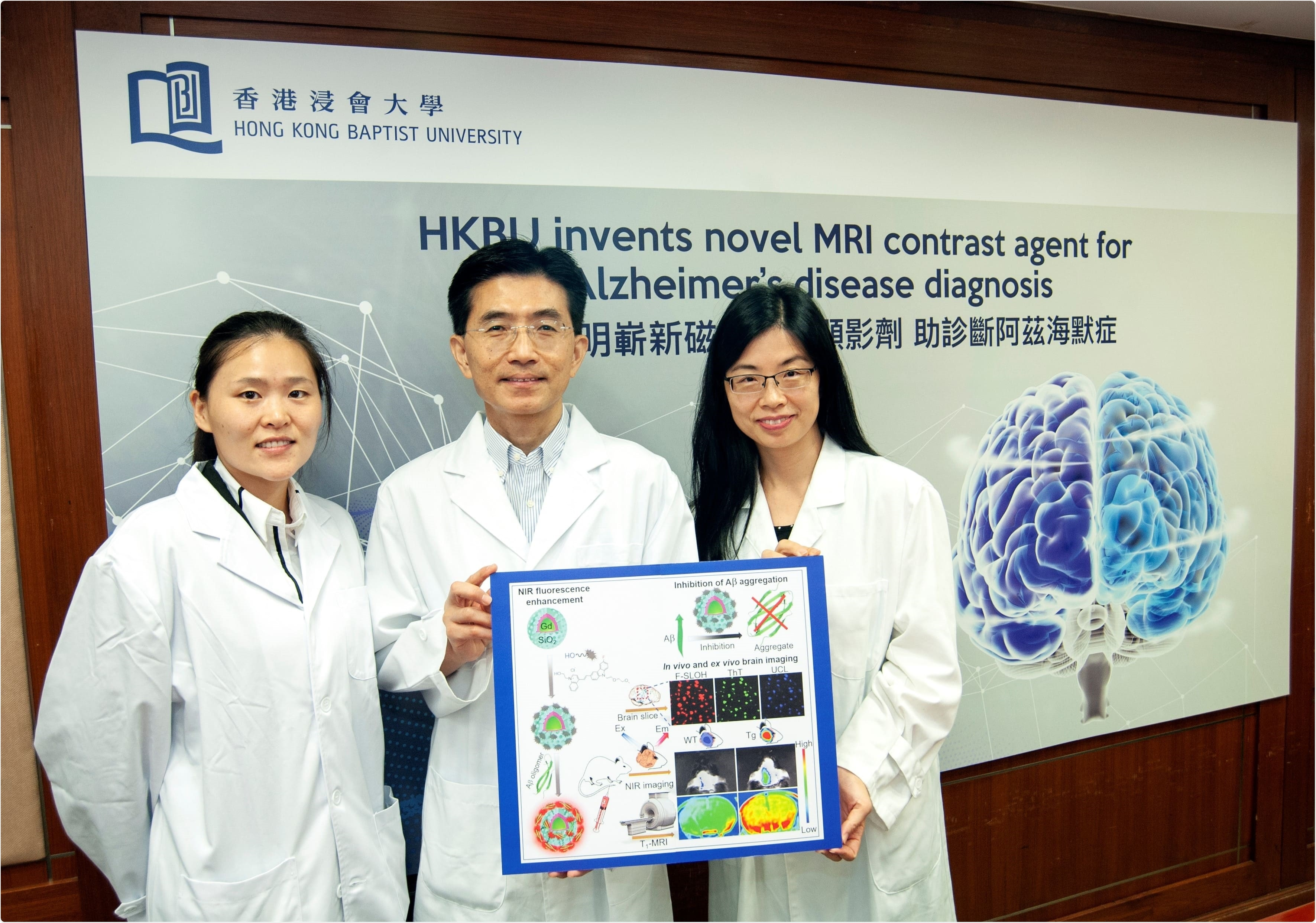 Novel MRI contrast agent offers hope for early detection of Alzheimer's disease