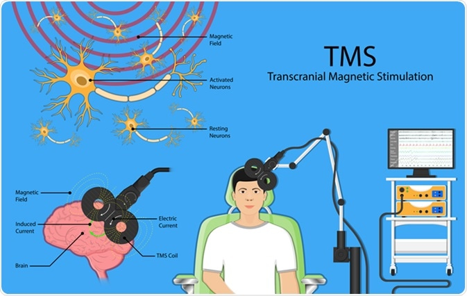 Transcranial magnetic stimulation TMS. Image Credit: Rumruay / Shutterstock