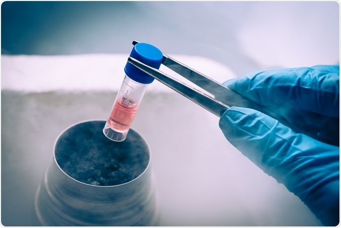 A Liquid Nitrogen bank containing a suspension of stem cells. Image Credit: Elena Pavlovich / Shutterstock