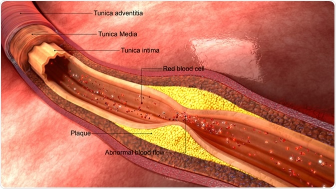 Atherosclerosis 3d illustration. Credit: Sciencepics / Shutterstock