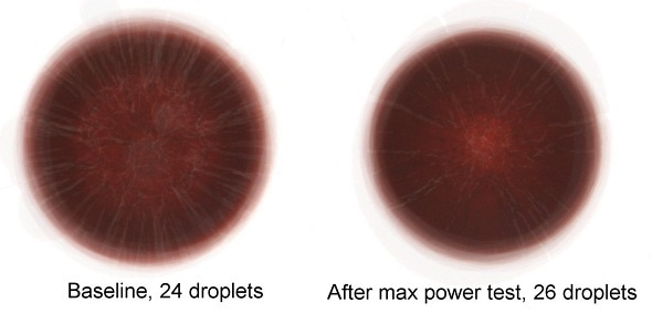 Patterns and cracks from dried blood droplets could indicate specific health conditions