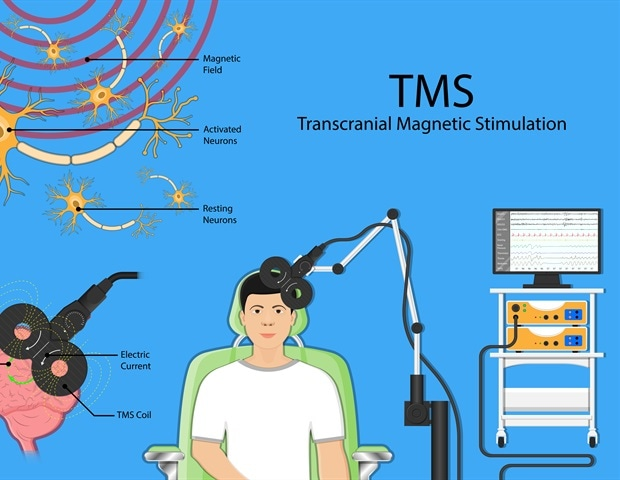 Transcranial Magnetic Stimulation Therapy for Depression