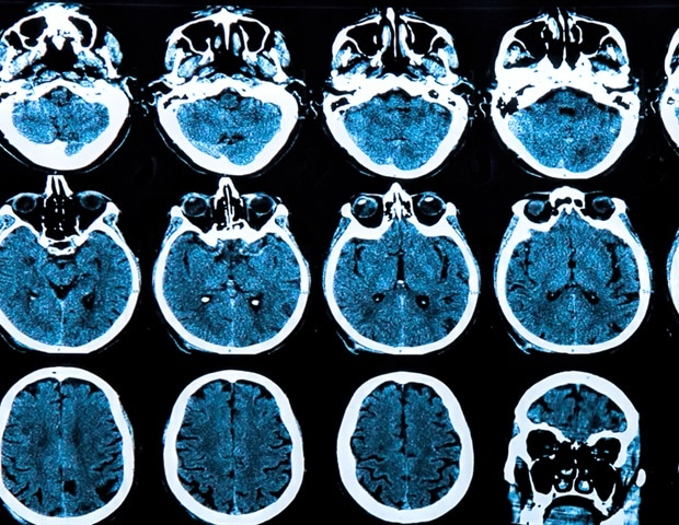Age-linked cognitive decline could be slowed by immune activation