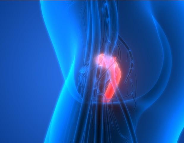 Increased risk of uterine cancer linked to 24 gene variants