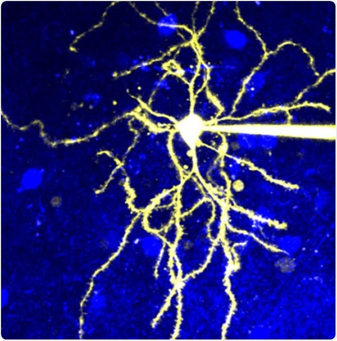 Microscopic image of a neuron that expresses D2R. Image Credit: © 2020 Yagishita et al.