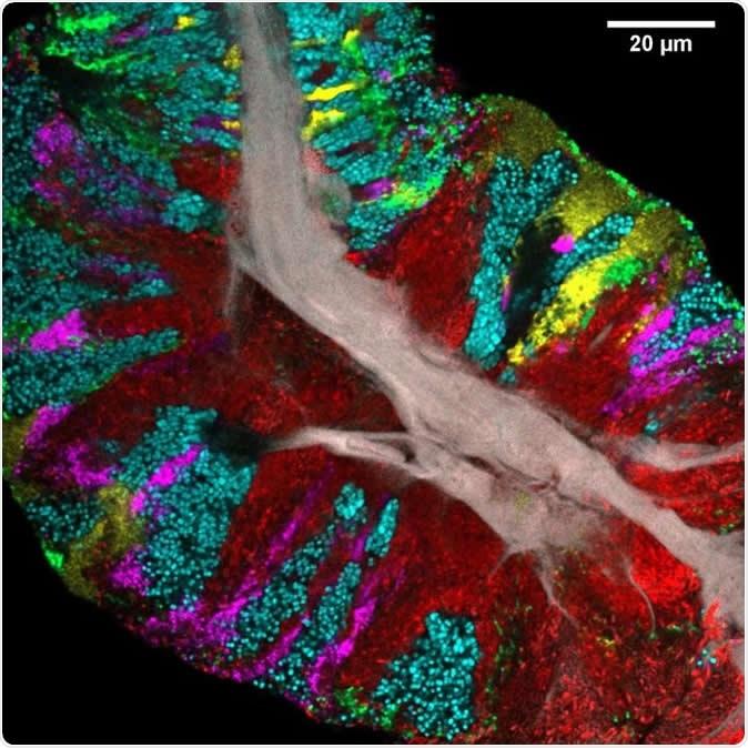 Biofilm bactérien gratté à la surface de la langue et imagé à l'aide de CLASI-FISH. Le tissu épithélial humain forme un noyau central (gris). Les couleurs indiquent différentes bactéries: les actinomyces (rouges) occupent une région proche du noyau; Le streptocoque (vert) est localisé dans une croûte extérieure et en rayures à l'intérieur. D'autres taxons (Rothia, cyan; Neisseria, jaune; Veillonella, magenta) sont présents en grappes et en rayures qui suggèrent la croissance de la communauté vers l'extérieur à partir du noyau central. Crédit d'image: Steven Wilbert et Gary Borisy, The Forsyth Institute