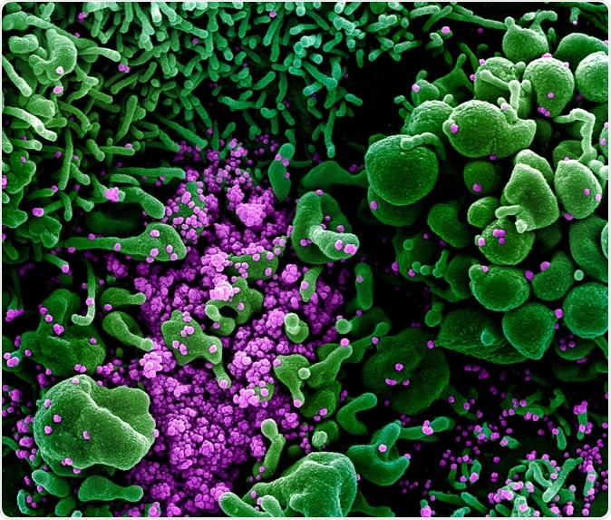 Novel Coronavirus SARS-CoV-2 Colorized scanning electron micrograph of an apoptotic cell (green) heavily infected with SARS-COV-2 virus particles (purple), isolated from a patient sample. Image captured and color-enhanced at the NIAID Integrated Research Facility (IRF) in Fort Detrick, Maryland. Credit: NIAID