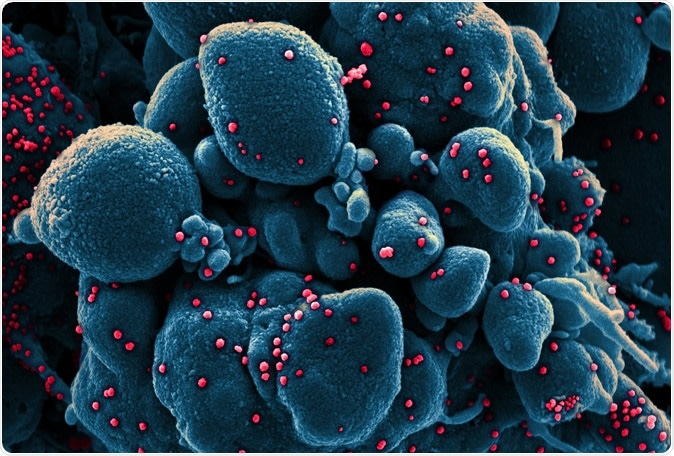 Nouveau coronavirus SARS-CoV-2 Micrographie électronique colorisée à balayage d'une cellule apoptotique (bleue) infectée par des particules du virus SARS-COV-2 (rouge), isolée d'un échantillon de patient. Image capturée au NIAID Integrated Research Facility (IRF) à Fort Detrick, Maryland. Crédits: NIAID