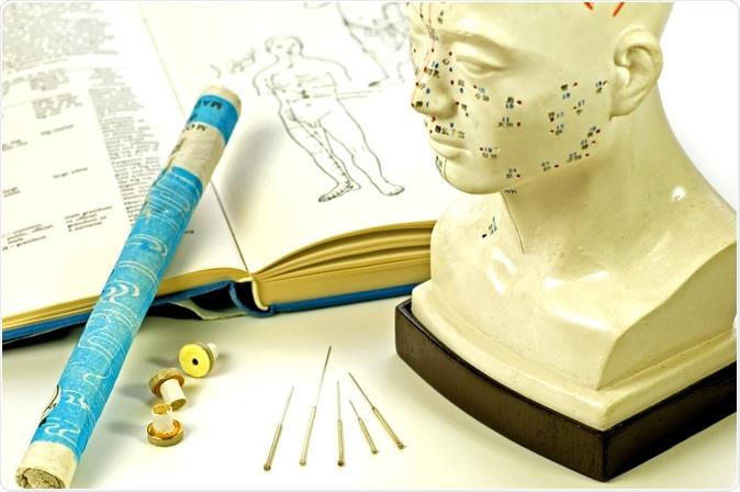 L'étude a évalué l'efficacité de l'acupuncture manuelle comme traitement prophylactique pour les patients naïfs d'acupuncture souffrant de migraine épisodique sans aura. Crédit d'image: Hjochen / Shutterstock