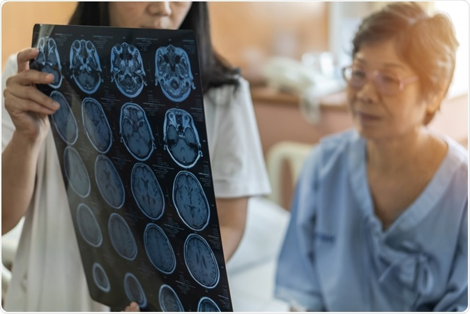 Association of Stress-Related Disorders With Subsequent Neurodegenerative Diseases. Image Credit: Chinnapong / Shutterstock