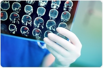 Insights into diagnosis and treatment of rare pediatric brain cancer
