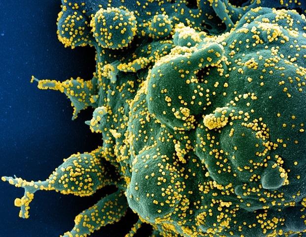 Antiparasitic drug Ivermectin kills coronavirus in 48 hours