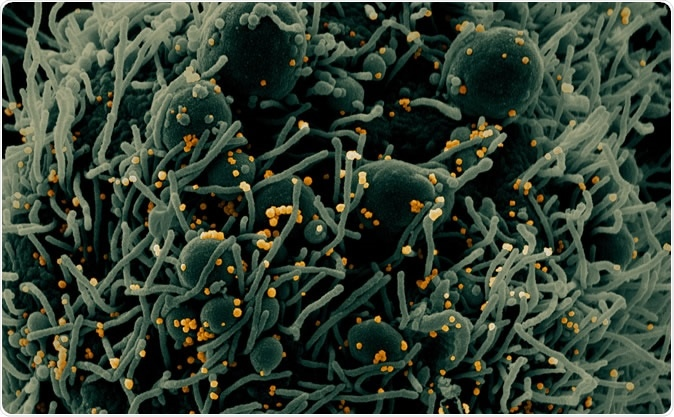 Novel Coronavirus SARS-CoV-2 - Colorized scanning electron micrograph of an apoptotic cell (green) infected with SARS-COV-2 virus particles (orange), isolated from a patient sample. Image captured at the NIAID Integrated Research Facility (IRF) in Fort Detrick, Maryland. Credit: NIAID