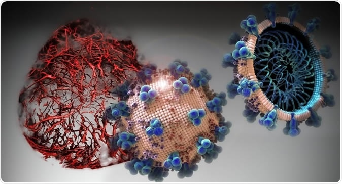 Nas culturas celulares analisadas no presente estudo, o hrsACE2 inibiu a carga de coronavírus por um fator de 1.000 a 5.000.  Crédito: IMBA / Tibor Kulcsar