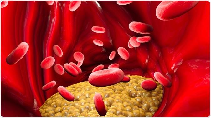Cholesterol formation. Illustration Credit: Naeblys / Shutterstock