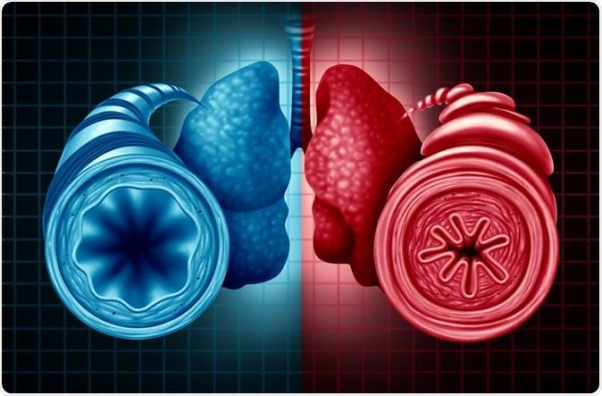 Asthma and coronavirus disease - COVID-19