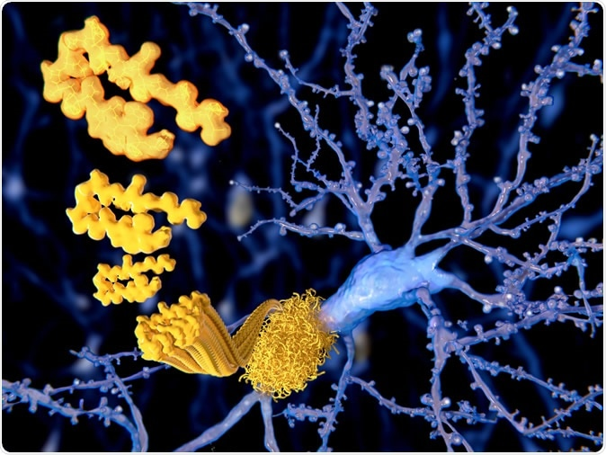 The beta amyloid peptid, amyloid plaques growing on a neuron. It consists of about 30 amino acids and aggregates to amyloid plaques, that may damage and kill neurons. Image Credit: Juan Gaertner / Shutterstock