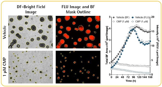 Multi-Spheroid 3D Tumor Assays Development for Live-Cell Analysis