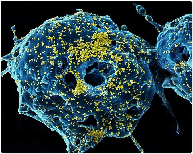 Particules du virus MERS Micrographie électronique à balayage colorisée de particules de virus du syndrome respiratoire du Moyen-Orient (jaune) fixées à la surface d'une cellule VERO E6 infectée (bleu). Image capturée et rehaussée de couleurs au NIAID Integrated Research Facility à Fort Detrick, Maryland. Crédits: NIAID