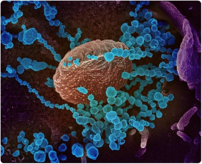 Novel Coronavirus SARS-CoV-2 Cette image au microscope électronique à balayage montre le SARS-CoV-2 (objets bleus ronds) émergeant de la surface des cellules cultivées en laboratoire. Le SRAS-CoV-2, également connu sous le nom de 2019-nCoV, est le virus qui cause COVID-19. Le virus montré a été isolé d'un patient aux États-Unis Image capturée et colorisée au NIAID