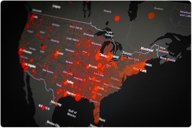 Étude: L'impact de COVID-19 sur les communautés afro-américaines aux États-Unis. Crédit d'image: Gargantiopa / Shutterstock