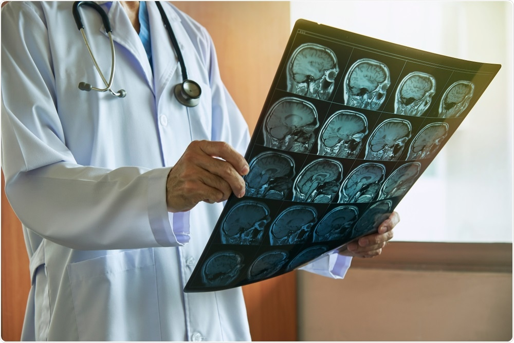 Study: Magnetic Resonance Imaging Alteration of the Brain in a Patient With Coronavirus Disease 2019 (COVID-19) and Anosmia. Image Credit: Teeradej / Shutterstock