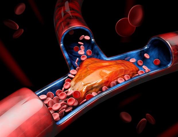 Deep vein clots in critical COVID-19 illness