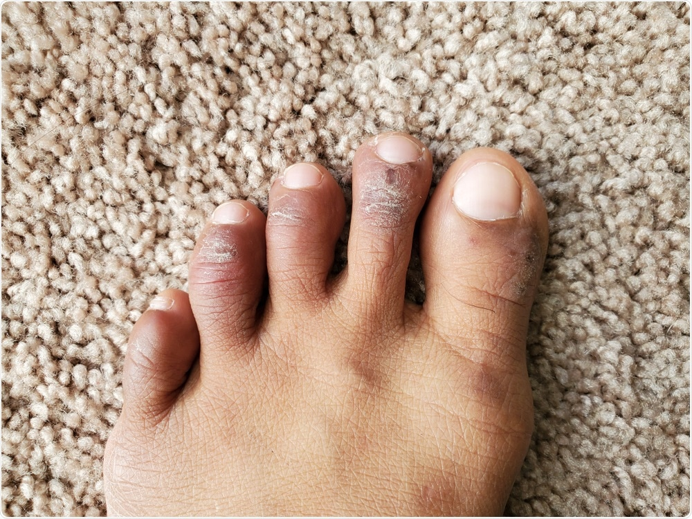Chilblains on the toes. Image Credit: Ms.Giggles / Shutterstock