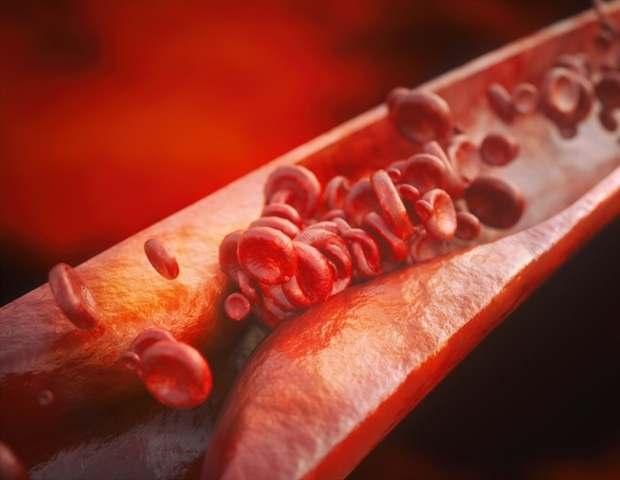 Scientists develop peptides that restore balance in gut bacteria and reverse atherosclerosis