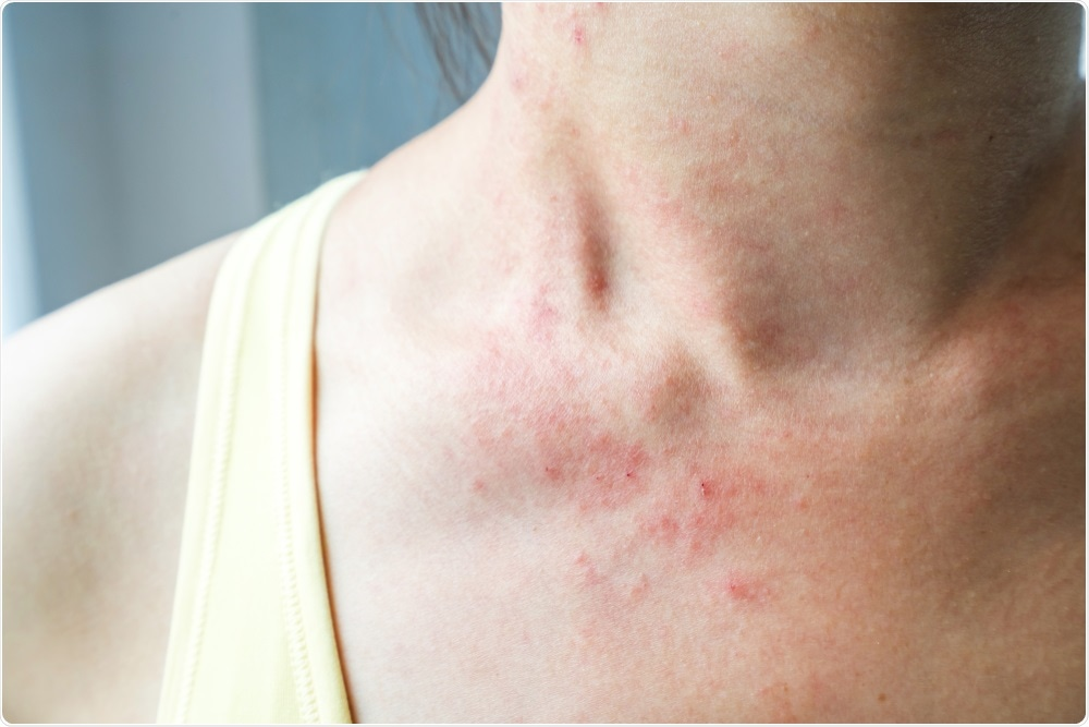Study: Diagnostic value of skin manifestation of SARS-CoV-2 infection. Image Credit: kitzcorner / Shutterstock