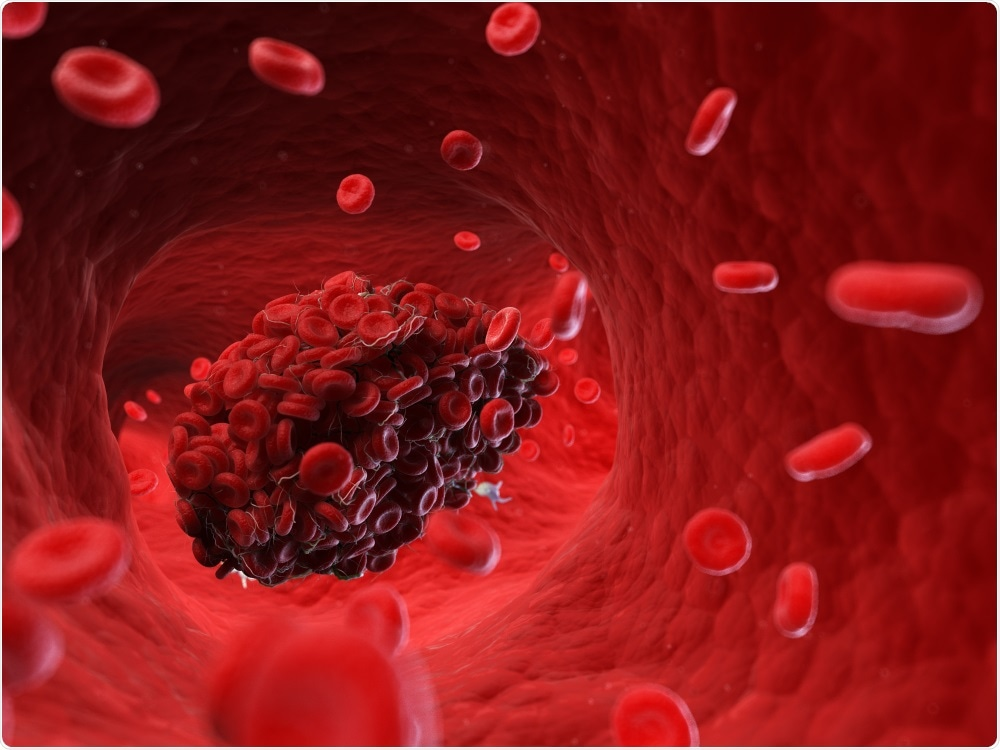 Study: Haematological characteristics and risk factors in the classification and prognosis evaluation of COVID-19: a retrospective cohort study. Image Credit: SciePro / Shutterstock