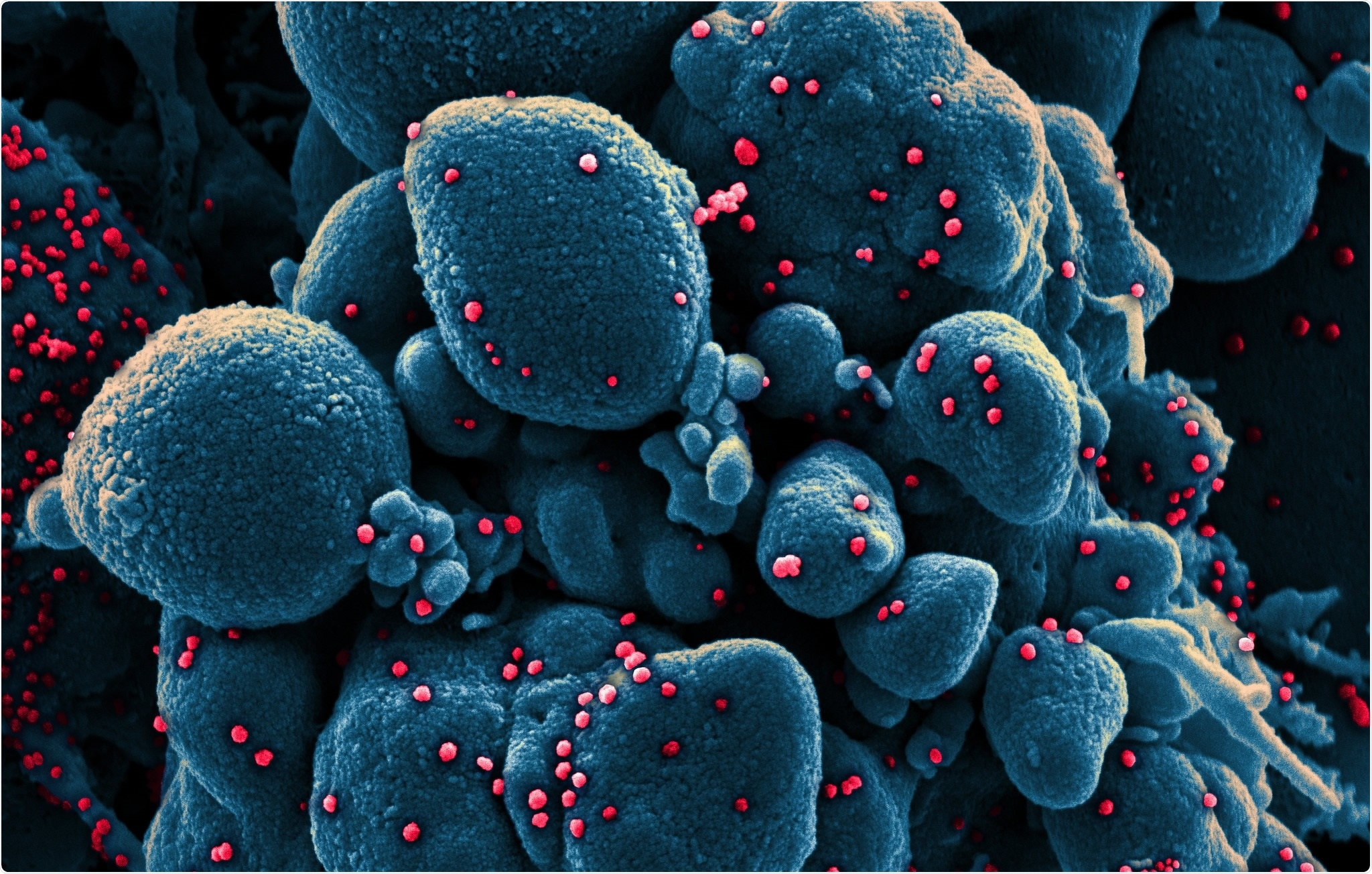 Colorized scanning electron micrograph of an apoptotic cell (blue) infected with SARS-COV-2 virus particles (red), isolated from a patient sample. Image captured at the NIAID Integrated Research Facility (IRF) in Fort Detrick, Maryland. Credit: NIAID