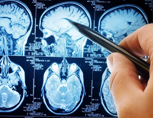 Anxiety and depression coexisting could cause physical changes to the brain