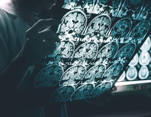 Creating a blood test for the detection of Alzheimer's disease – News-Medical.Net