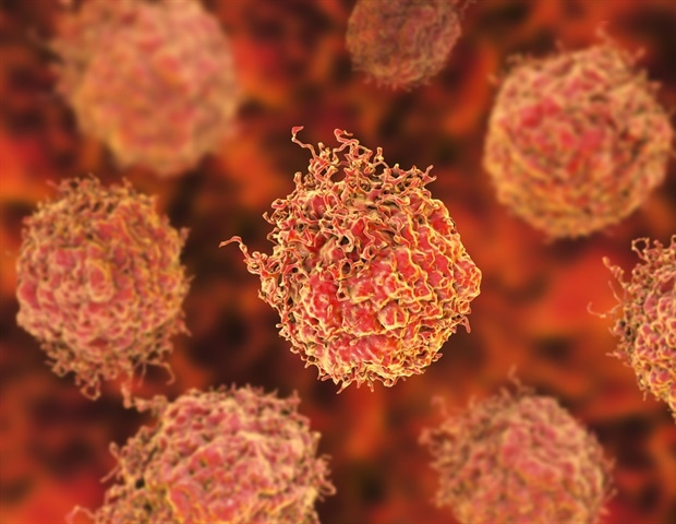 Developing a blood test for prostate cancer – News-Medical.Net