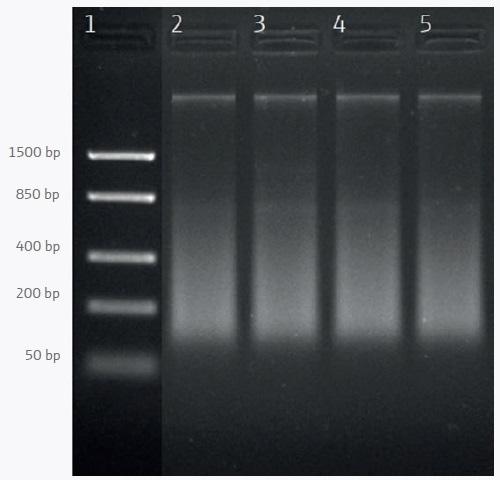 Agarose gel electrophoresis of DNA extracted from frozen shrimp samples. Lane 1: DNA ladder; lanes 2–5: Samples 1–4.